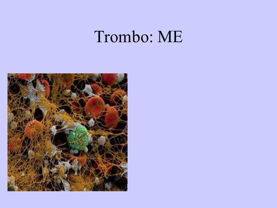 EMBOLISMOS E INFARTO PULMONARES: Morfología E.