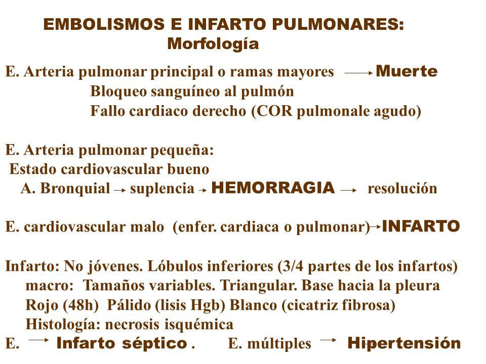 EMBOLISMOS E INFARTO PULMONARES: Morfología E. Arteria pulmonar principal o ramas mayores Muerte Bloqueo sanguíneo al pulmón Fallo cardiaco derecho (C