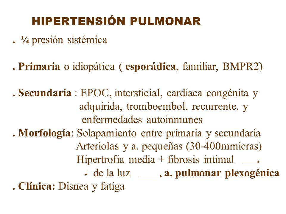 HIPERTENSIÓN PULMONAR. ¼ presión sistémica. Primaria o idiopática ( esporádica, familiar, BMPR2). Secundaria : EPOC, intersticial, cardiaca congénita