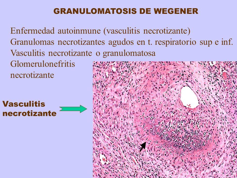 GRANULOMATOSIS DE WEGENER Enfermedad autoinmune (vasculitis necrotizante) Granulomas necrotizantes agudos en t. respiratorio sup e inf. Vasculitis nec
