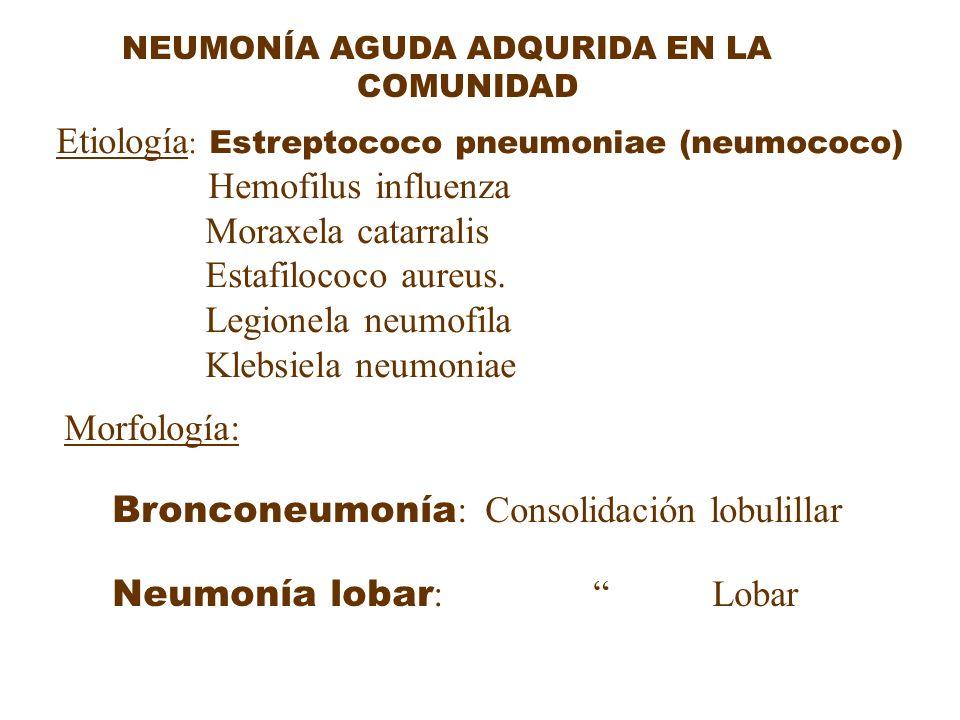 NEUMONÍA AGUDA ADQURIDA EN LA COMUNIDAD Etiología : Estreptococo pneumoniae (neumococo) Hemofilus influenza Moraxela catarralis Estafilococo aureus. L