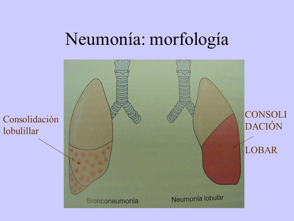 Neumonía: morfología Consolidación lobulillar CONSOLI DACIÓN LOBAR