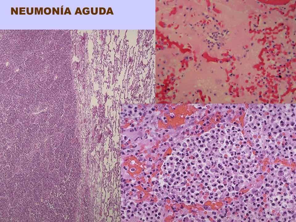 NEUMONIA ATÍPICA de la COMUNIDAD Etiología: Micoplasma neumoniae Virus influenza A y B, adenovirus, VSR, rinovirus, etc Clamidia neumoniae y la Coxiela burnetti indeterminada Morfología: Focal o lobar o bilateral Histología: Patrón intersticial de la inflamación, predominante en paredes alveolares Septos alveolares ensanchados con inflamación Exudado intraalveolar y membranas hialinas