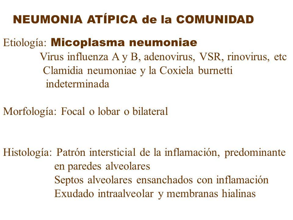 NEUMONIA ATÍPICA de la COMUNIDAD Etiología: Micoplasma neumoniae Virus influenza A y B, adenovirus, VSR, rinovirus, etc Clamidia neumoniae y la Coxiel