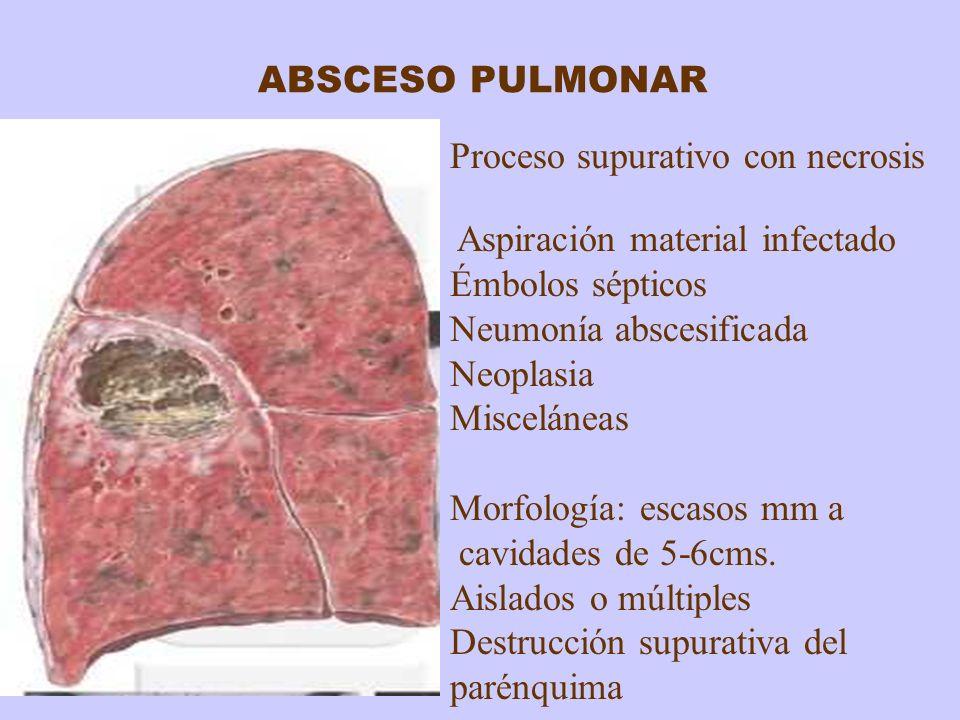 ABSCESO PULMONAR Proceso supurativo con necrosis Aspiración material infectado Émbolos sépticos Neumonía abscesificada Neoplasia Misceláneas Morfologí