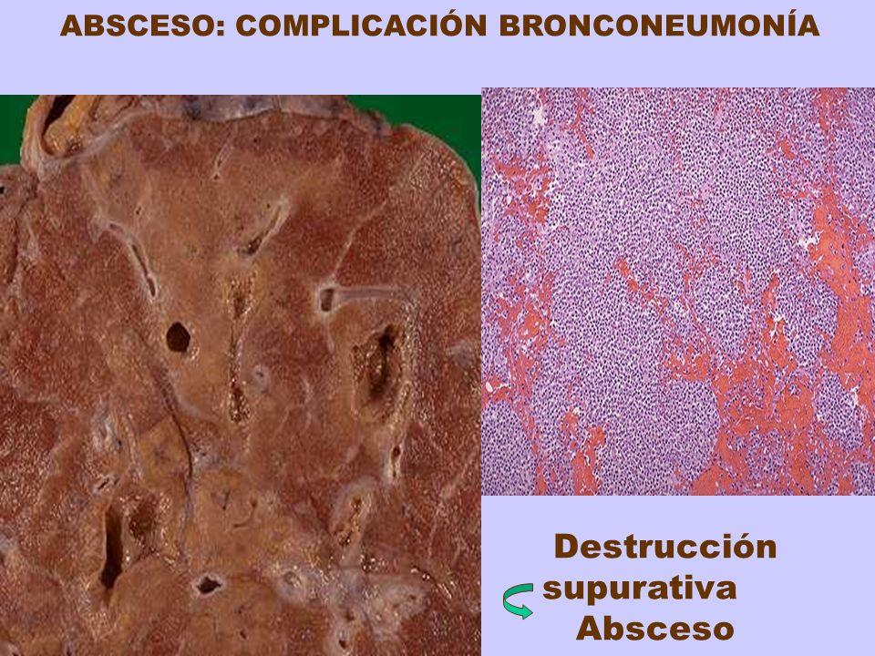 ABSCESO: COMPLICACIÓN BRONCONEUMONÍA Destrucción supurativa Absceso