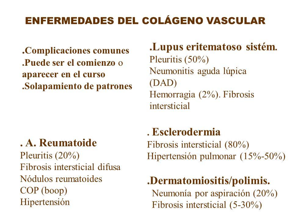 ENFERMEDADES DEL COLÁGENO VASCULAR. A. Reumatoide Pleuritis (20%) Fibrosis intersticial difusa Nódulos reumatoides COP (boop) Hipertensión.Lupus erite