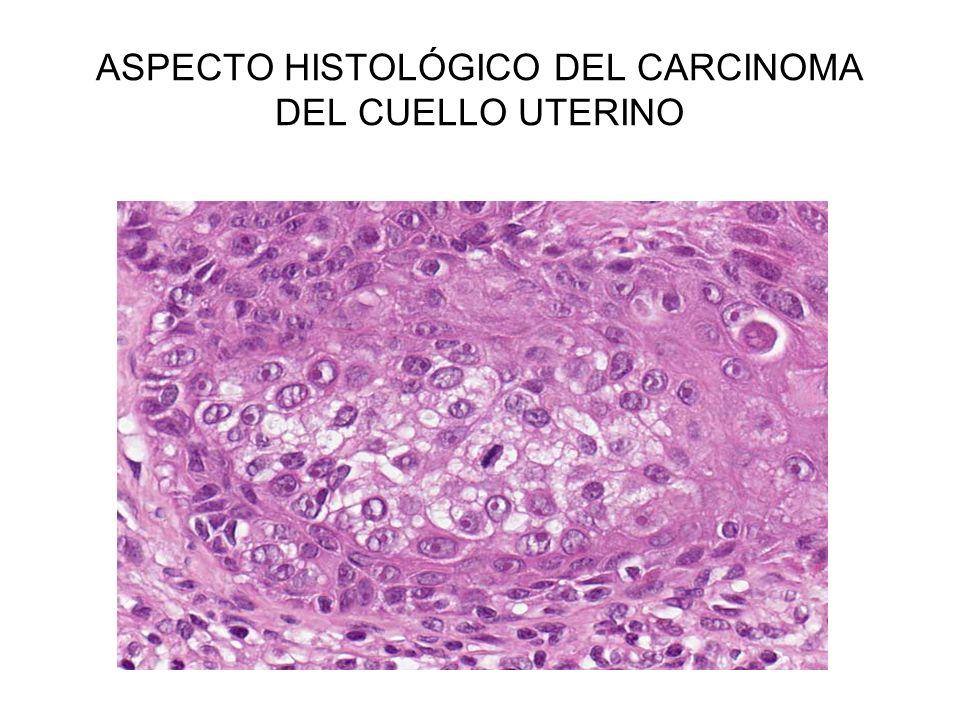 ASPECTO HISTOLÓGICO DEL CARCINOMA DEL CUELLO UTERINO