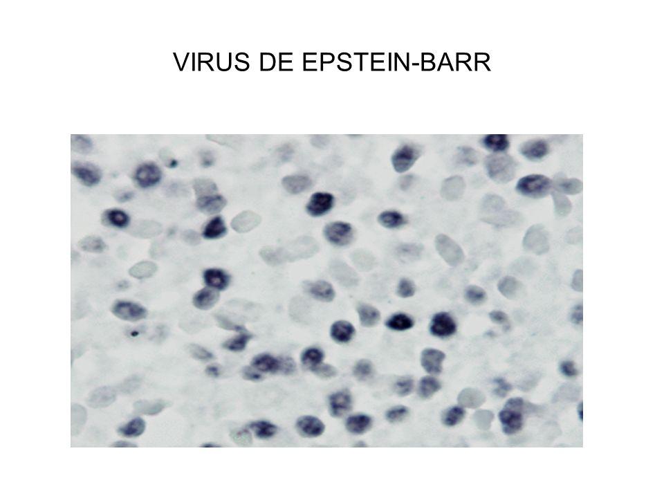 VIRUS DE EPSTEIN-BARR