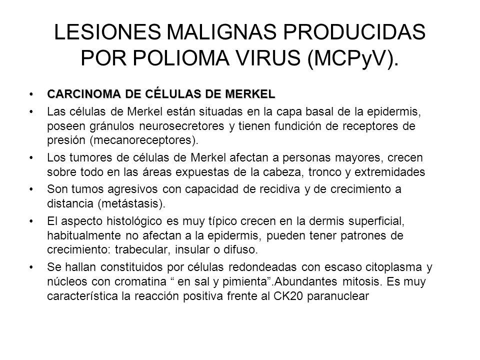 LESIONES MALIGNAS PRODUCIDAS POR POLIOMA VIRUS (MCPyV). CARCINOMA DE CÉLULAS DE MERKELCARCINOMA DE CÉLULAS DE MERKEL Las células de Merkel están situa