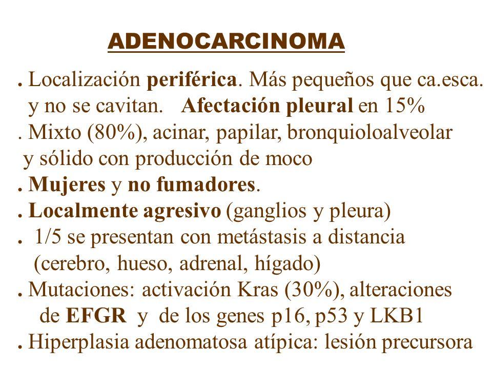 ADENOCARCINOMA. Localización periférica. Más pequeños que ca.esca. y no se cavitan. Afectación pleural en 15%. Mixto (80%), acinar, papilar, bronquiol