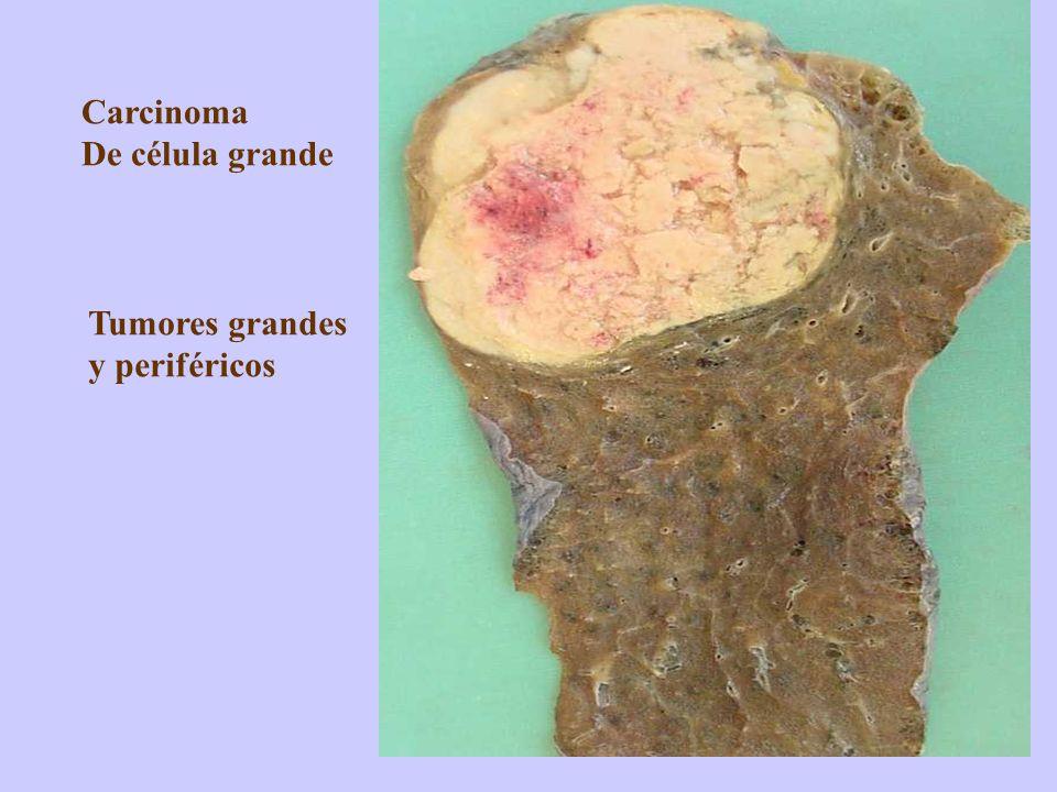 Carcinoma De célula grande Tumores grandes y periféricos