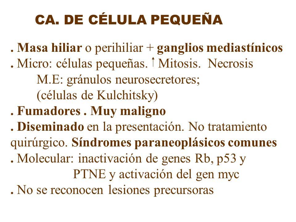 CA. DE CÉLULA PEQUEÑA. Masa hiliar o perihiliar + ganglios mediastínicos. Micro: células pequeñas. Mitosis. Necrosis M.E: gránulos neurosecretores; (c