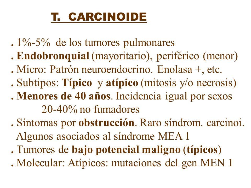 T. CARCINOIDE. 1%-5% de los tumores pulmonares. Endobronquial (mayoritario), periférico (menor). Micro: Patrón neuroendocrino. Enolasa +, etc.. Subtip