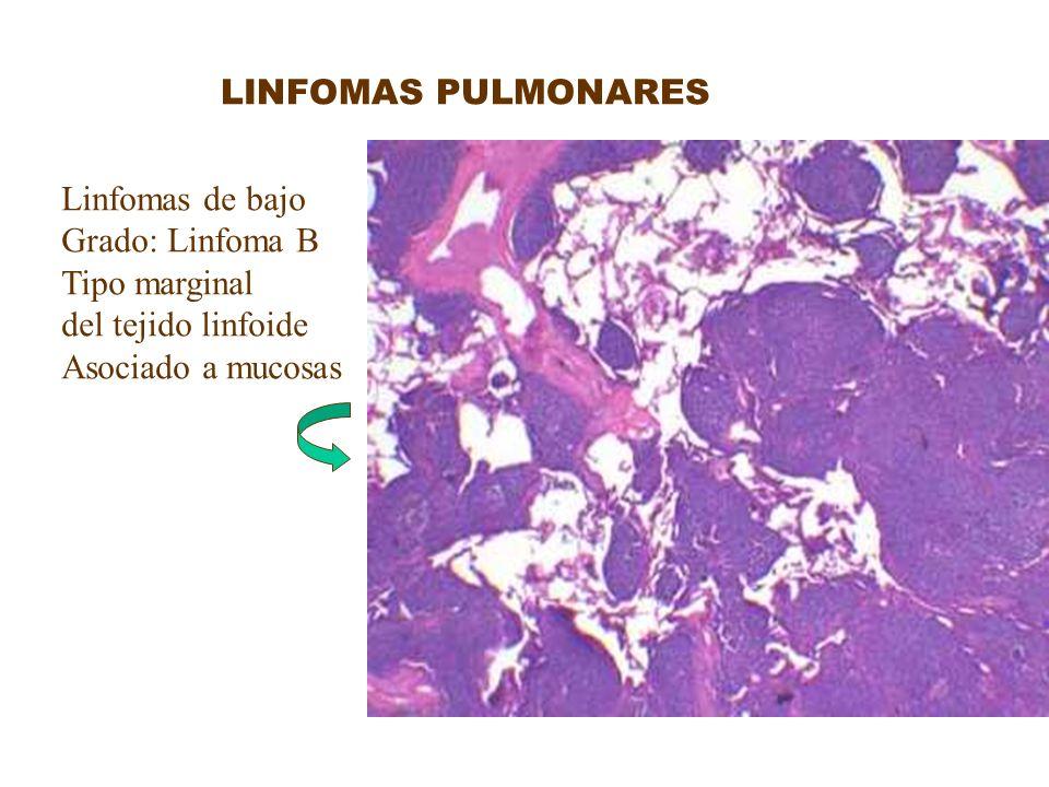 LINFOMAS PULMONARES Linfomas de bajo Grado: Linfoma B Tipo marginal del tejido linfoide Asociado a mucosas