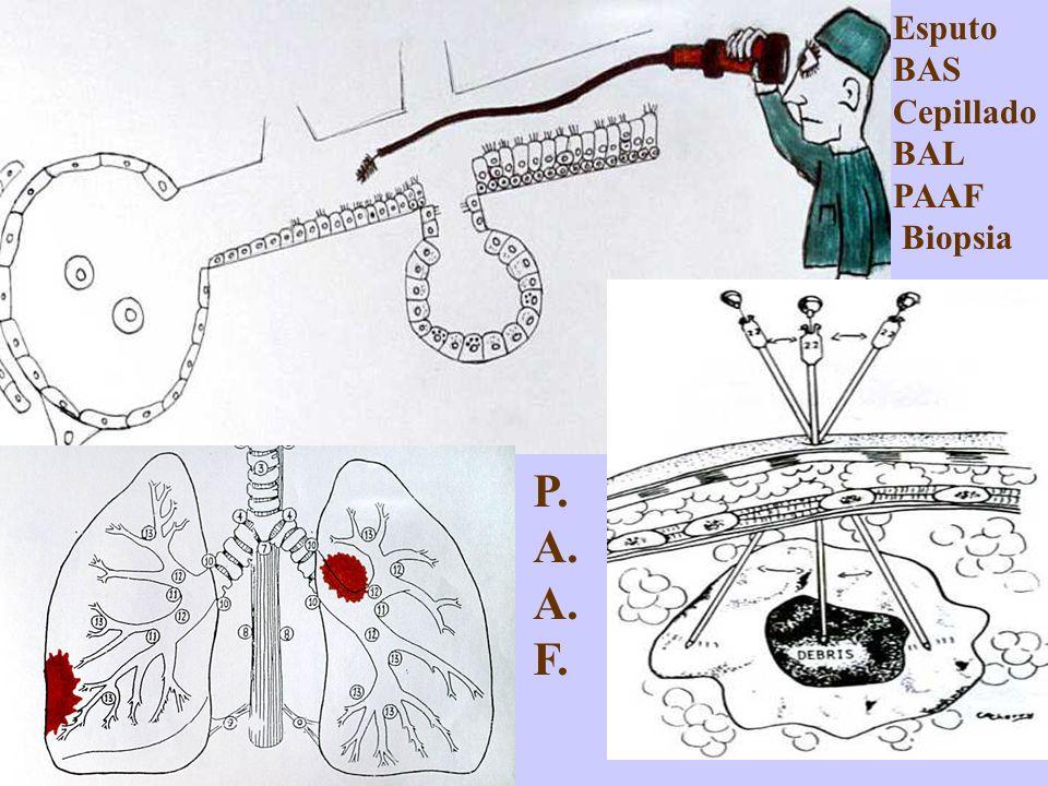 Esputo BAS Cepillado BAL PAAF Biopsia P. A. F.