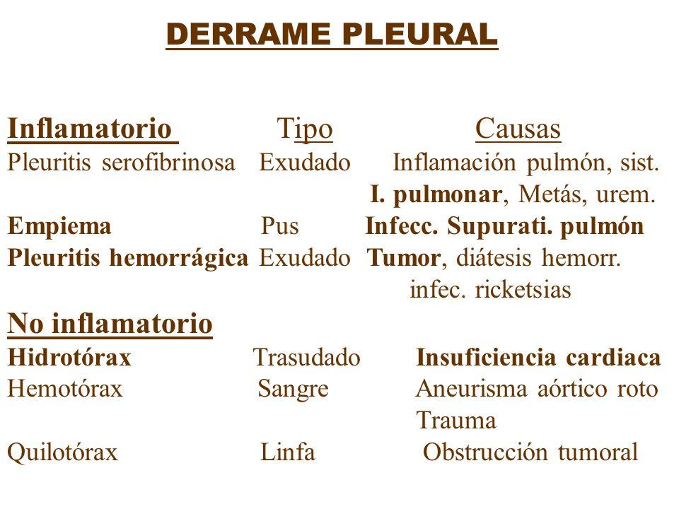 DERRAME PLEURAL Inflamatorio Tipo Causas Pleuritis serofibrinosa Exudado Inflamación pulmón, sist. I. pulmonar, Metás, urem. Empiema Pus Infecc. Supur