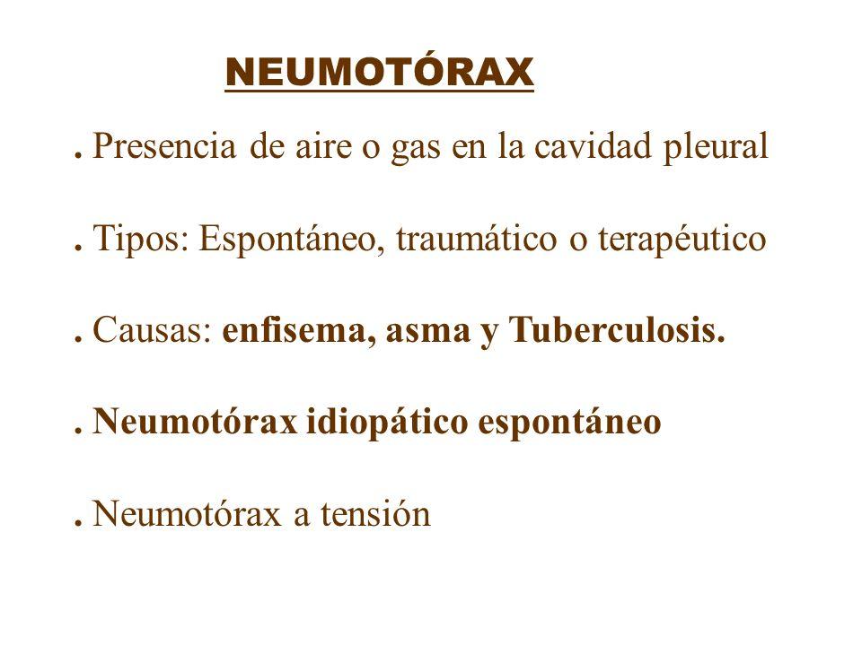 NEUMOTÓRAX. Presencia de aire o gas en la cavidad pleural. Tipos: Espontáneo, traumático o terapéutico. Causas: enfisema, asma y Tuberculosis.. Neumot