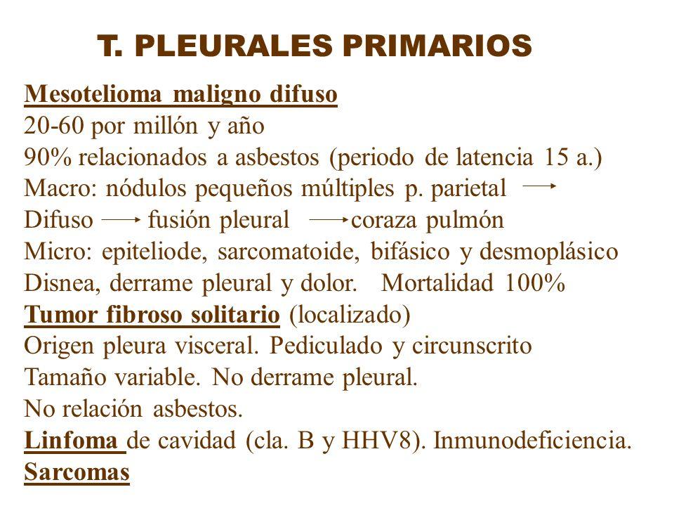 T. PLEURALES PRIMARIOS Mesotelioma maligno difuso 20-60 por millón y año 90% relacionados a asbestos (periodo de latencia 15 a.) Macro: nódulos pequeñ