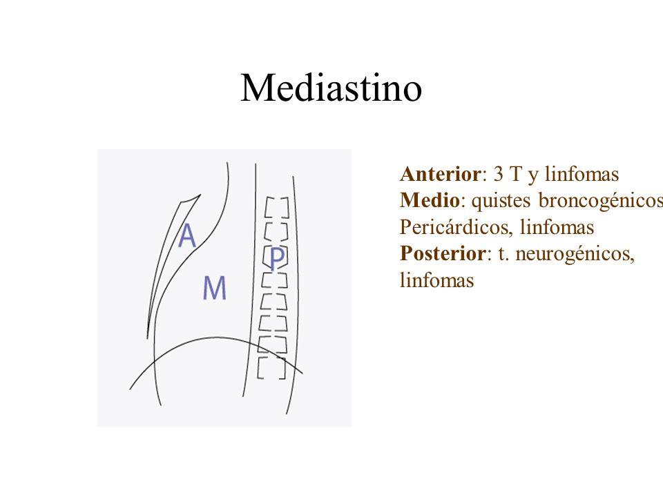 Mediastino Anterior: 3 T y linfomas Medio: quistes broncogénicos Pericárdicos, linfomas Posterior: t. neurogénicos, linfomas