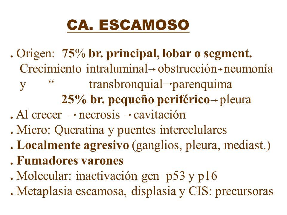 CA. ESCAMOSO. Origen: 75% br. principal, lobar o segment. Crecimiento intraluminal obstrucción neumonía y transbronquial parenquima 25% br. pequeño pe