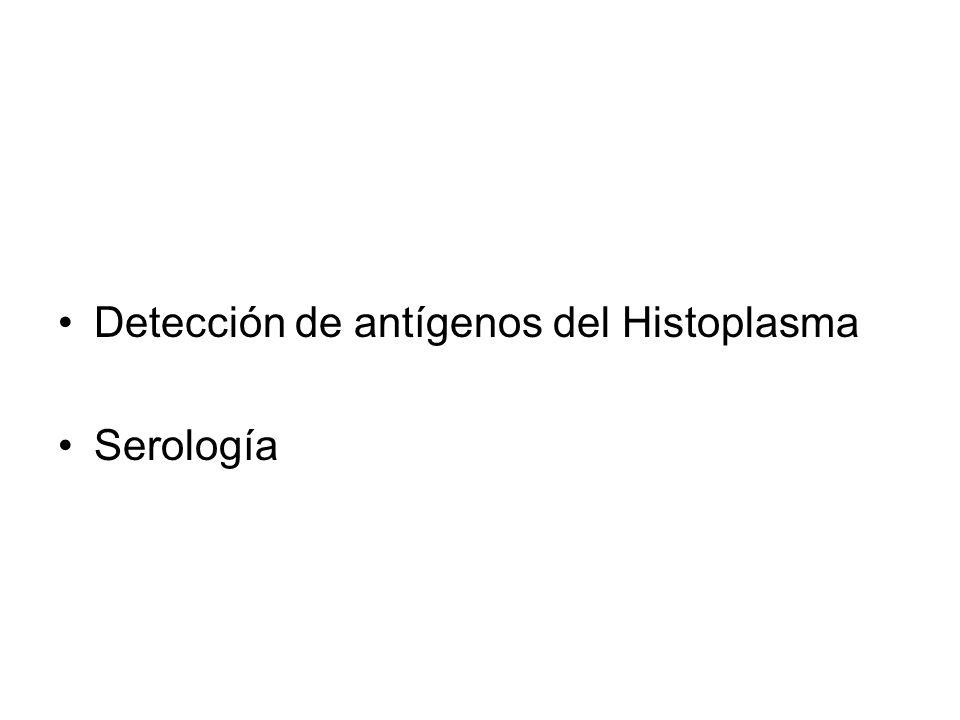 Detección de antígenos del Histoplasma Serología
