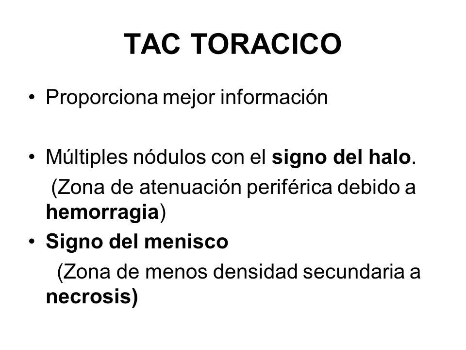 TAC TORACICO Proporciona mejor información Múltiples nódulos con el signo del halo. (Zona de atenuación periférica debido a hemorragia) Signo del meni