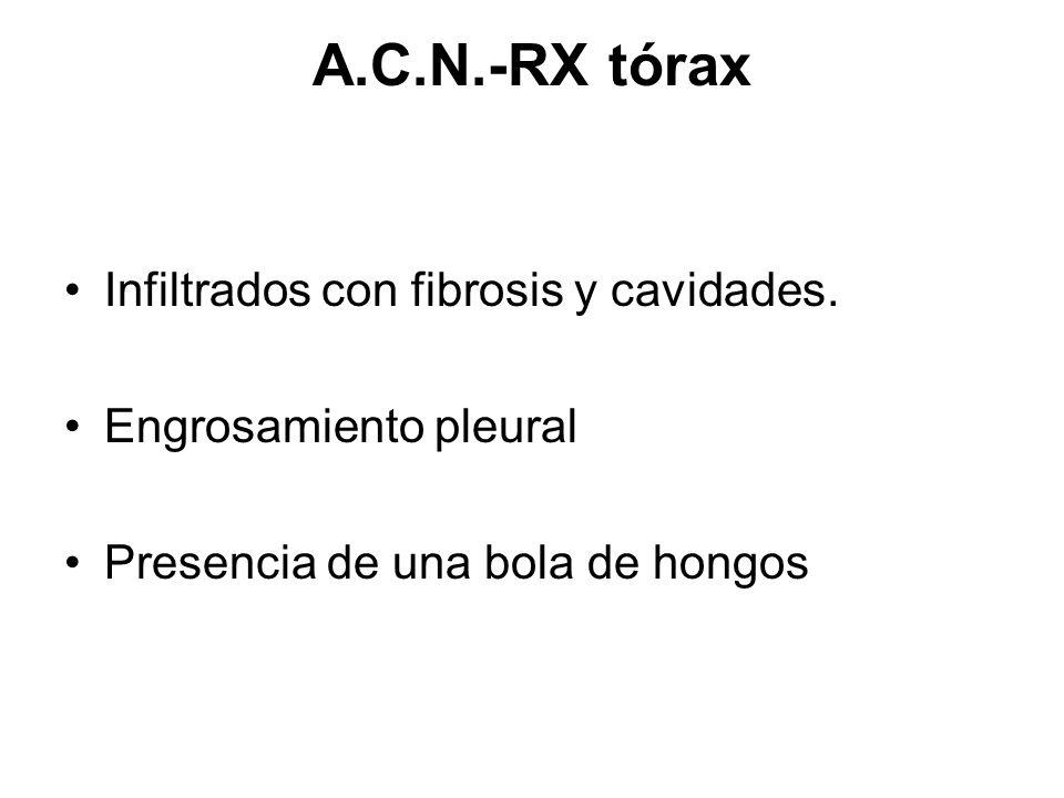 A.C.N.-RX tórax Infiltrados con fibrosis y cavidades. Engrosamiento pleural Presencia de una bola de hongos