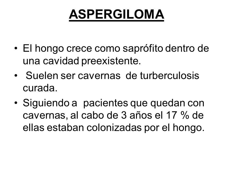 ASPERGILOMA El hongo crece como saprófito dentro de una cavidad preexistente. Suelen ser cavernas de turberculosis curada. Siguiendo a pacientes que q