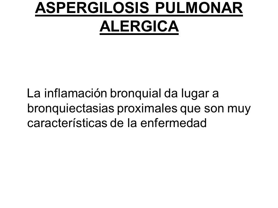 ASPERGILOSIS PULMONAR ALERGICA La inflamación bronquial da lugar a bronquiectasias proximales que son muy características de la enfermedad