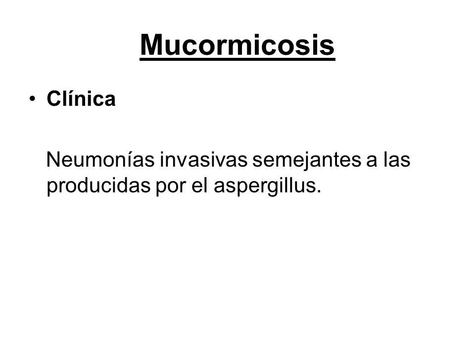 Mucormicosis Clínica Neumonías invasivas semejantes a las producidas por el aspergillus.