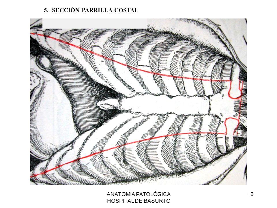 ANATOMÍA PATOLÓGICA HOSPITAL DE BASURTO 16 5.- SECCIÓN PARRILLA COSTAL