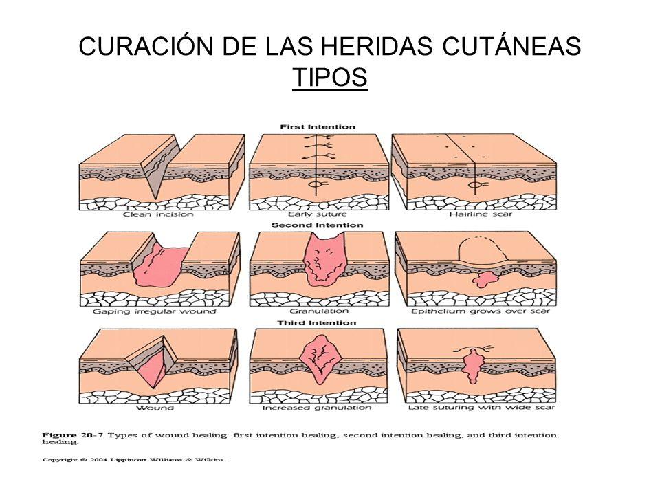 CURACIÓN DE LAS HERIDAS CUTÁNEAS TIPOS
