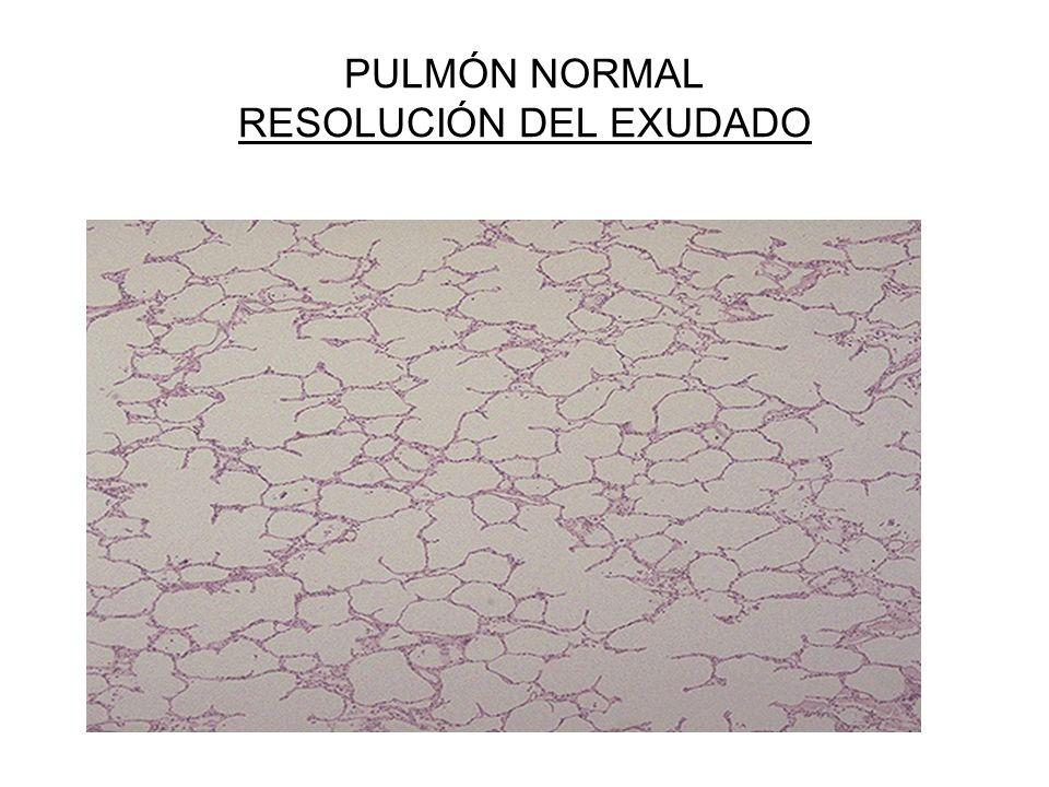 PULMÓN NORMAL RESOLUCIÓN DEL EXUDADO
