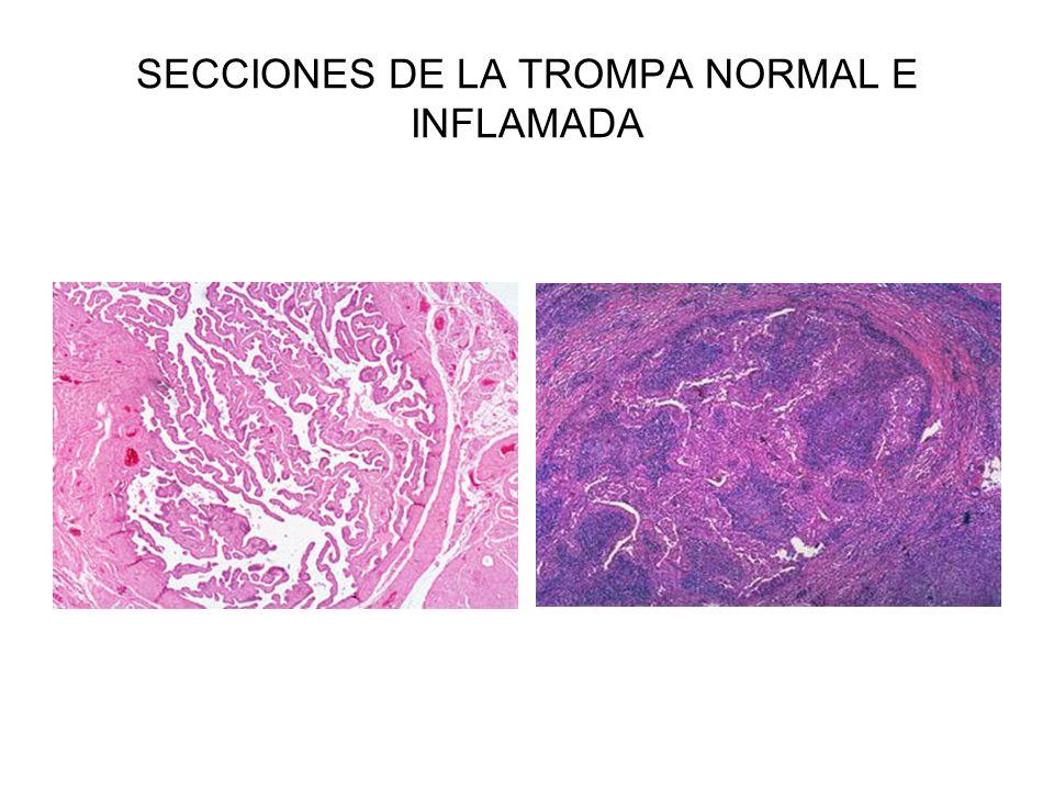 SECCIONES DE LA TROMPA NORMAL E INFLAMADA