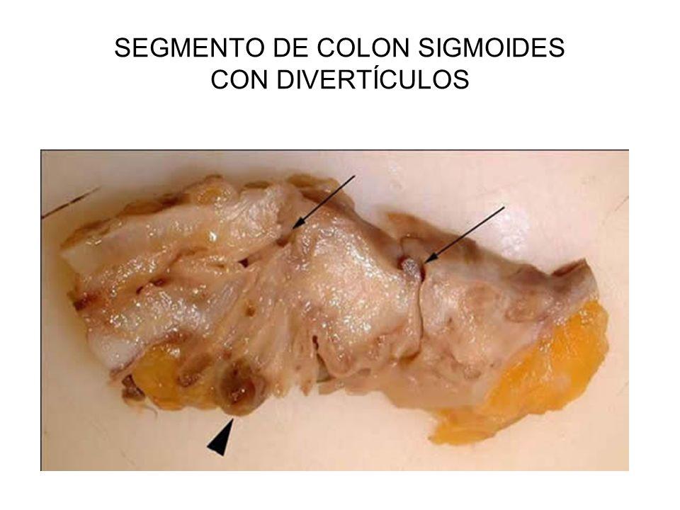 SEGMENTO DE COLON SIGMOIDES CON DIVERTÍCULOS