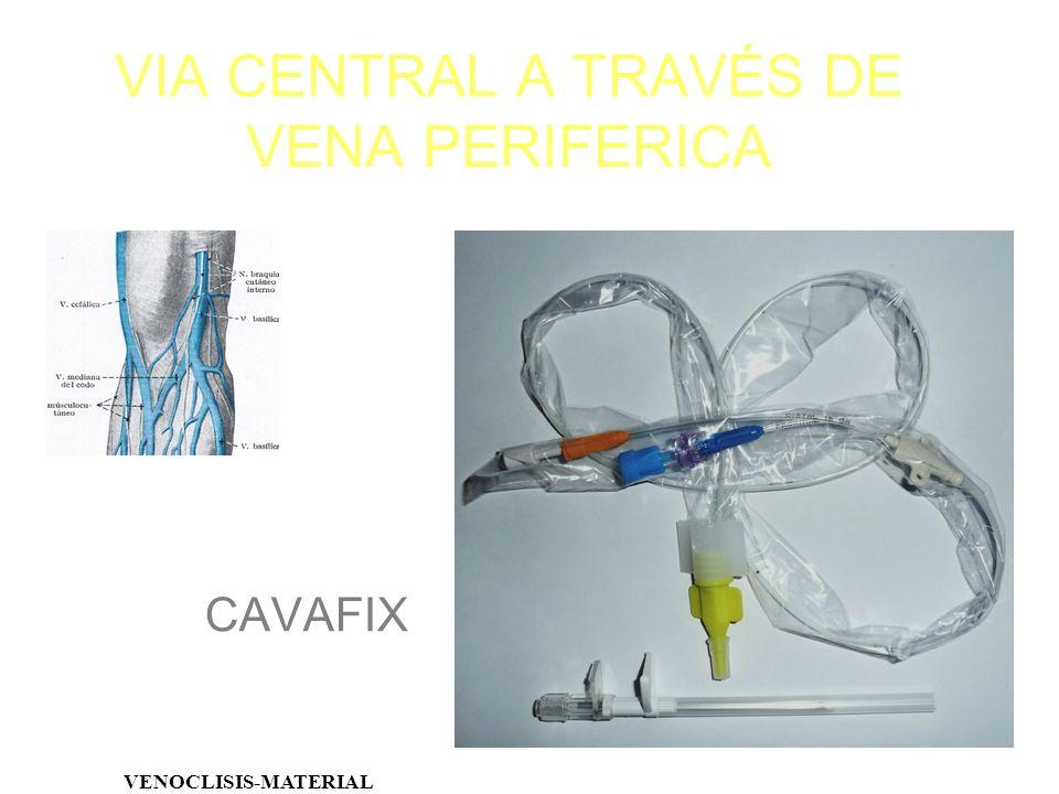 VIA CENTRAL A TRAVÉS DE VENA PERIFERICA VENOCLISIS-MATERIAL CAVAFIX