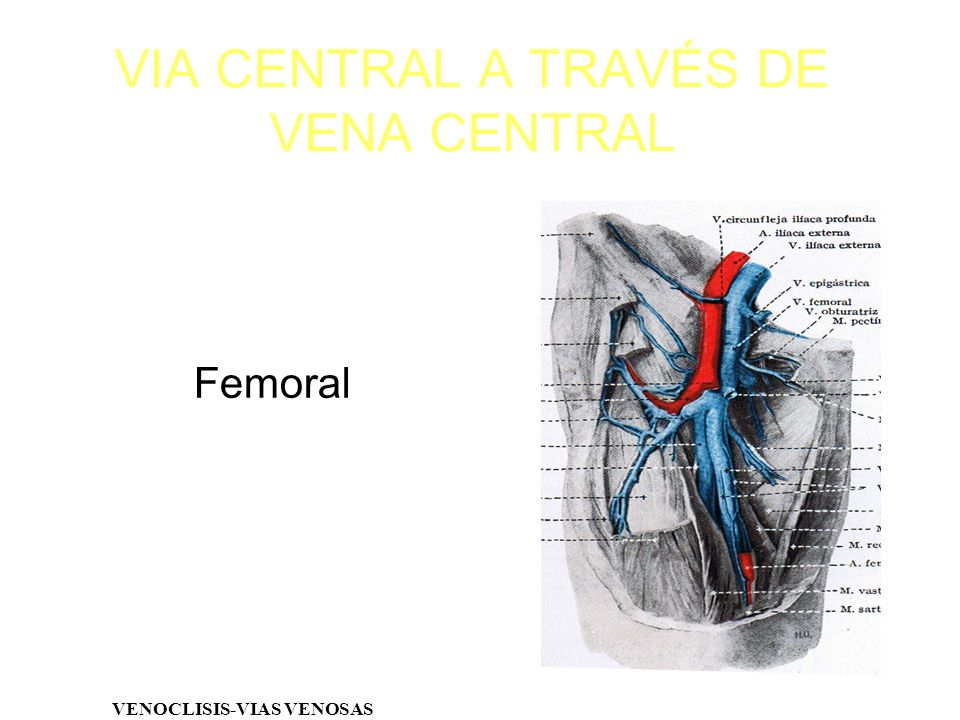 VIA CENTRAL A TRAVÉS DE VENA CENTRAL VENOCLISIS-VIAS VENOSAS Femoral