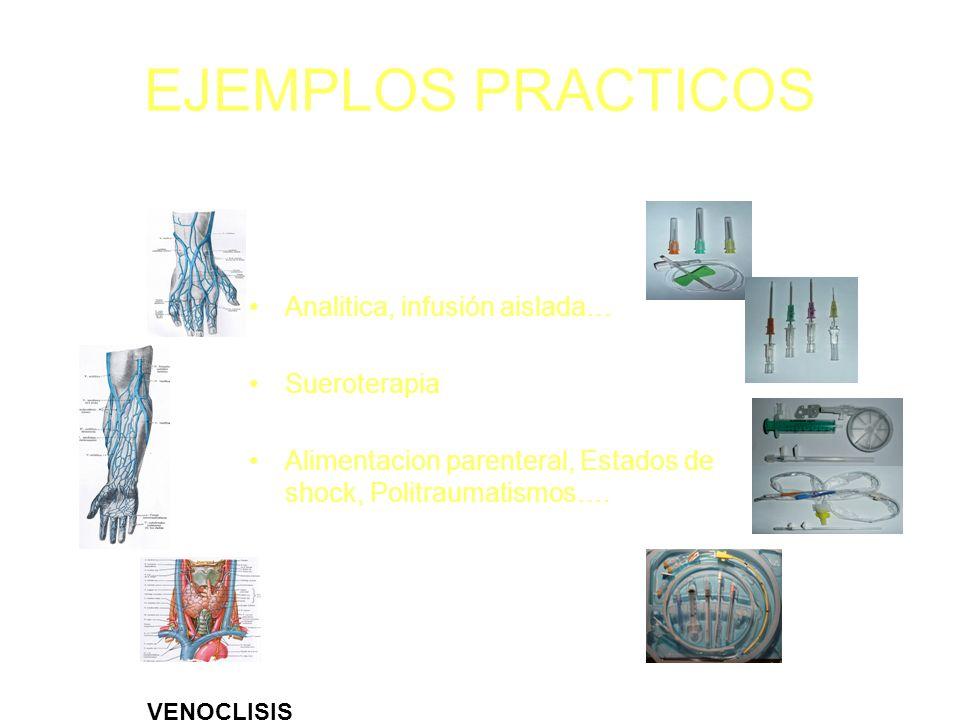 EJEMPLOS PRACTICOS Analitica, infusión aislada… Sueroterapia Alimentacion parenteral, Estados de shock, Politraumatismos…. VENOCLISIS
