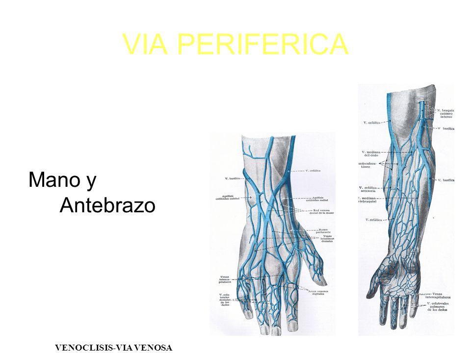 Mano y Antebrazo VENOCLISIS-VIA VENOSA VIA PERIFERICA