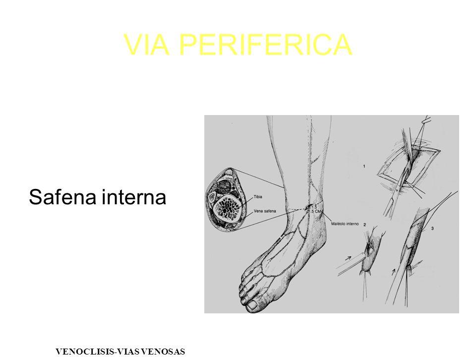 Safena interna VENOCLISIS-VIAS VENOSAS