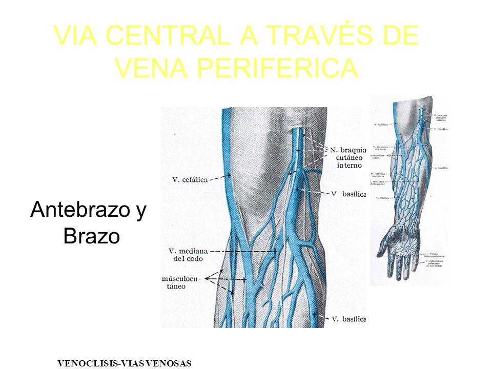 VIA CENTRAL A TRAVÉS DE VENA PERIFERICA Antebrazo y Brazo VENOCLISIS-VIAS VENOSAS