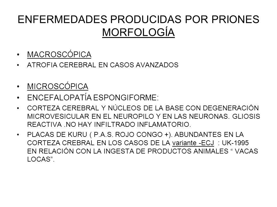 ENFERMEDADES PRODUCIDAS POR PRIONES MORFOLOGÍA MACROSCÓPICA ATROFIA CEREBRAL EN CASOS AVANZADOS MICROSCÓPICA ENCEFALOPATÍA ESPONGIFORME: CORTEZA CEREB