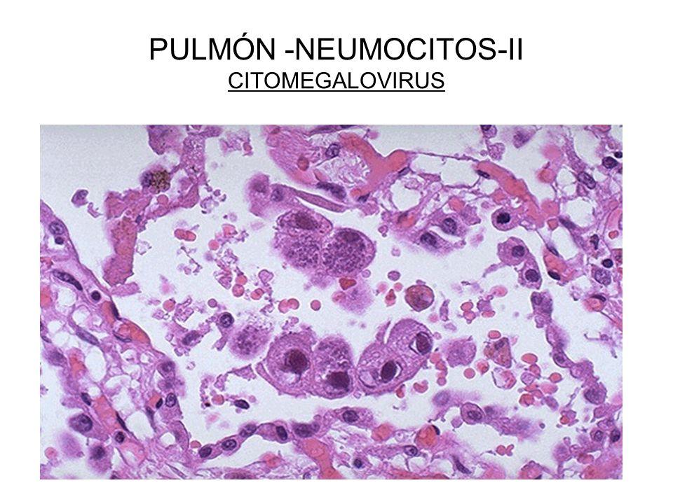 PULMÓN -NEUMOCITOS-II CITOMEGALOVIRUS