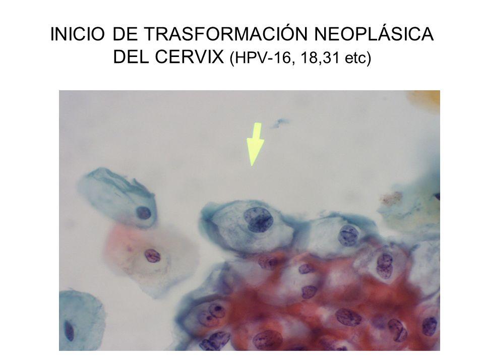 INICIO DE TRASFORMACIÓN NEOPLÁSICA DEL CERVIX (HPV-16, 18,31 etc)