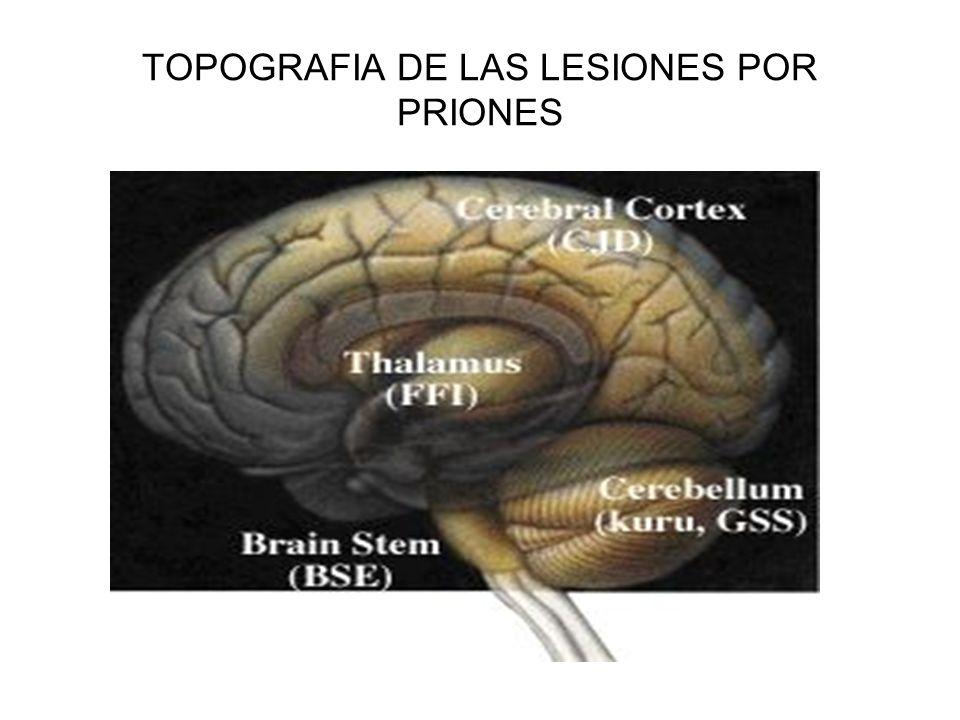 TOPOGRAFIA DE LAS LESIONES POR PRIONES