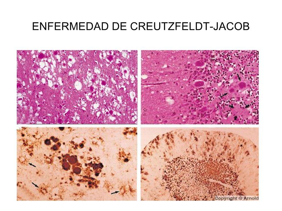 ENFERMEDAD DE CREUTZFELDT-JACOB
