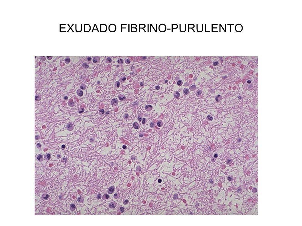 EXUDADO FIBRINO-PURULENTO