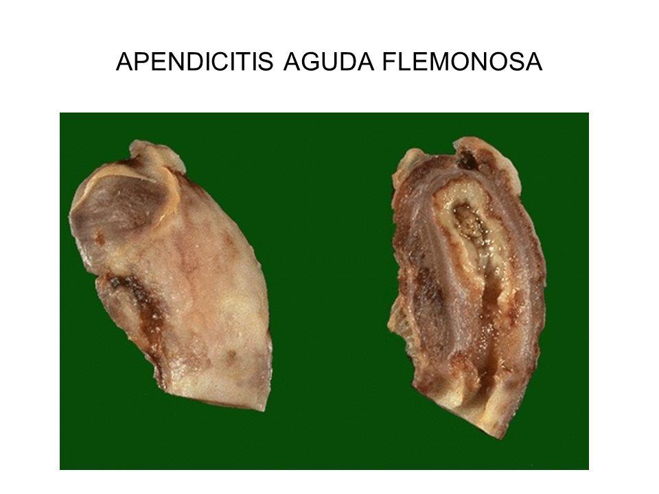 APENDICITIS AGUDA FLEMONOSA