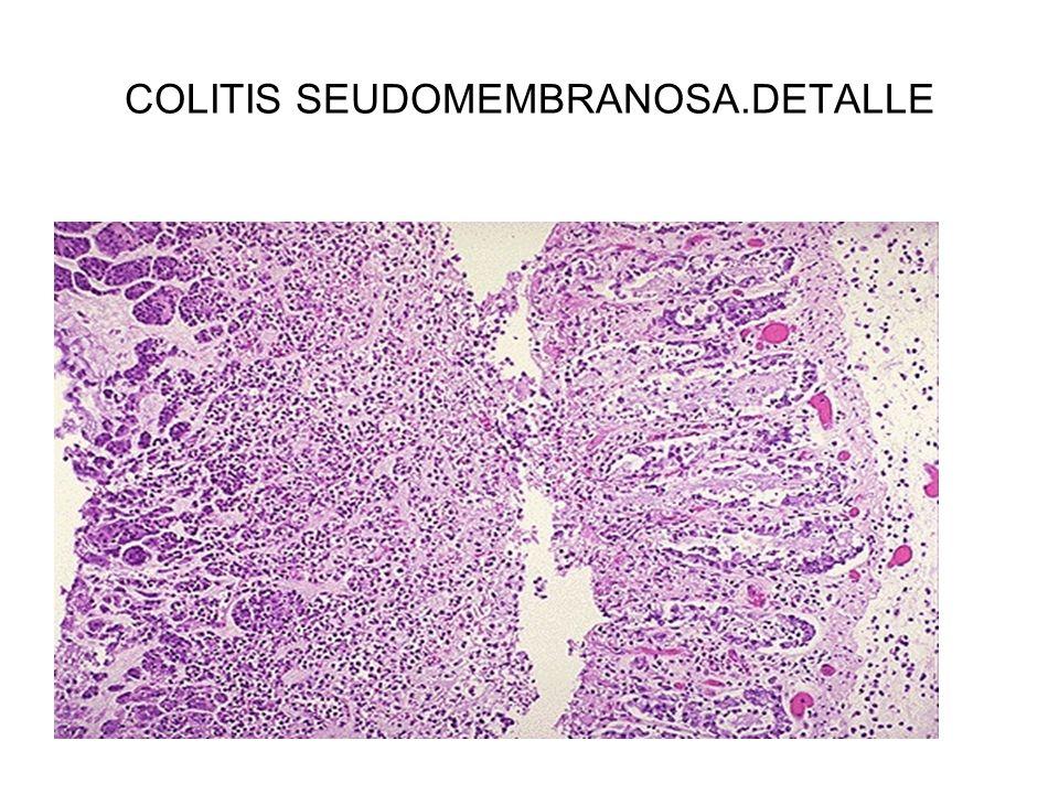 COLITIS SEUDOMEMBRANOSA.DETALLE